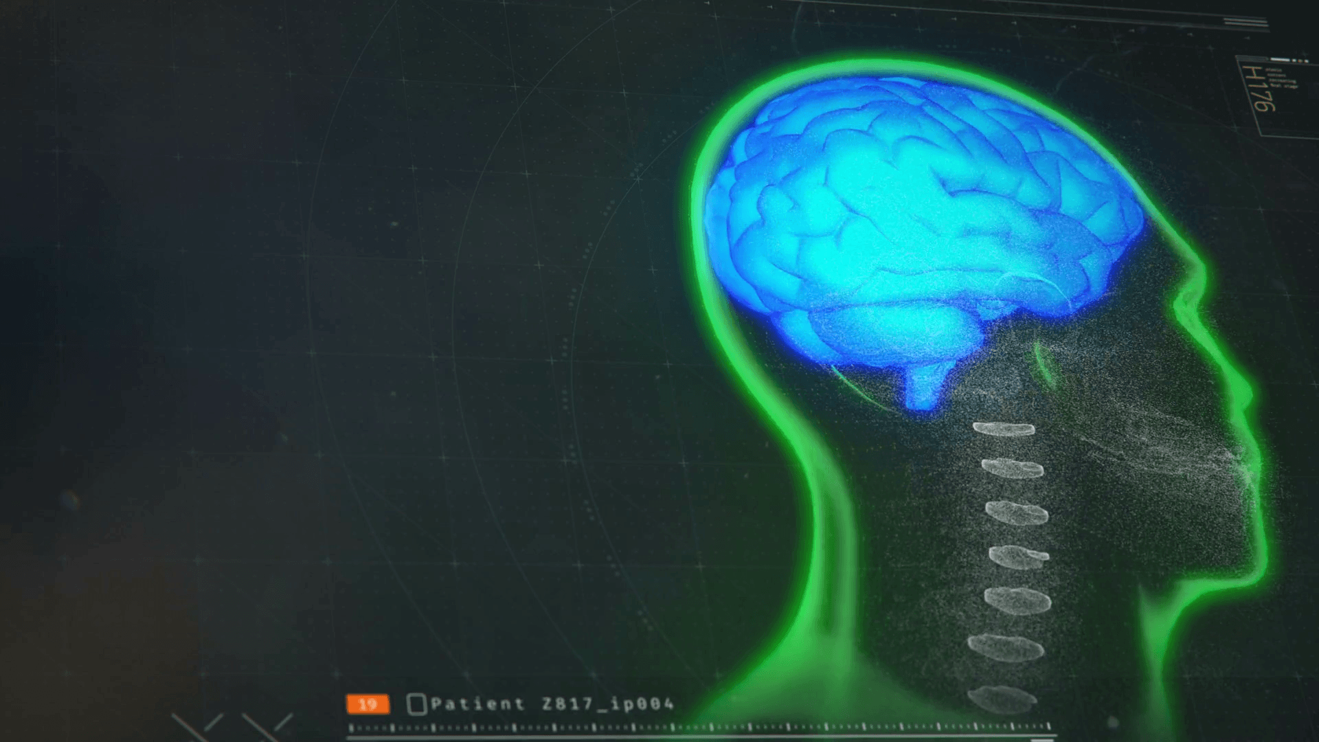 1920x1080 Medical software monitoring patient's brain activity, MRI test ...